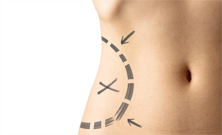 liposuccion avant operation